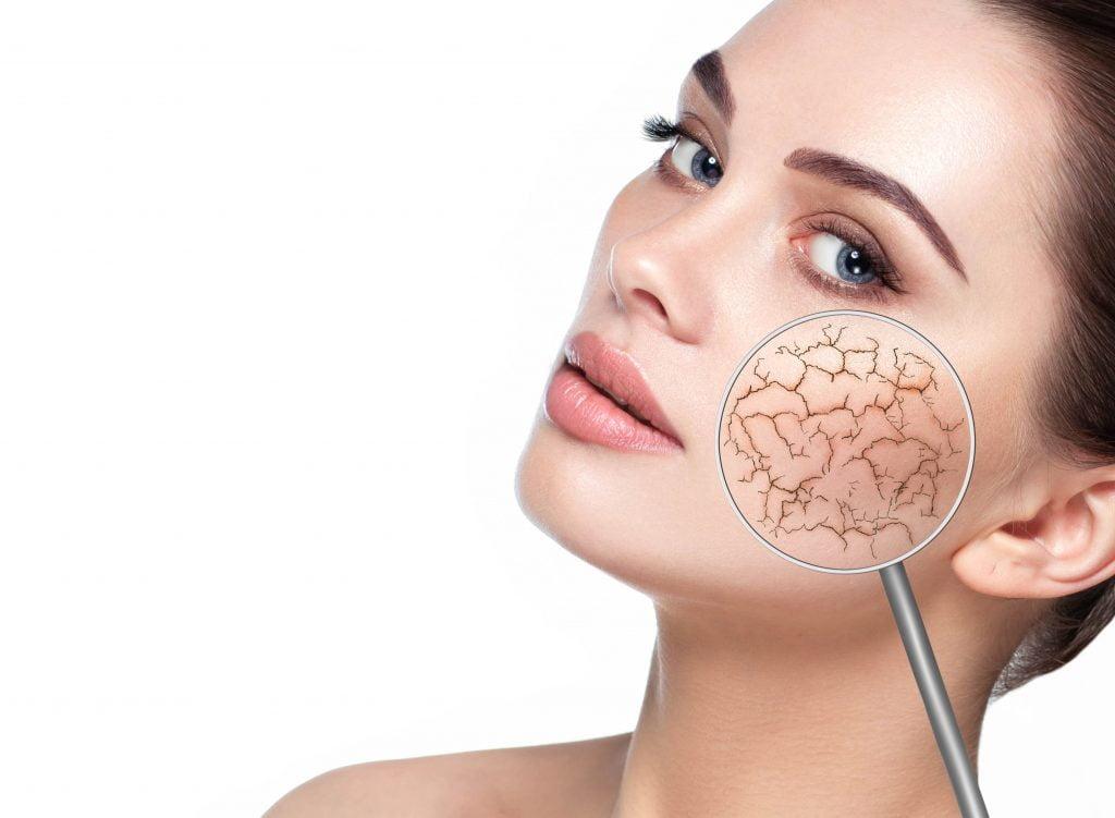 Sucha skóra u kobiety