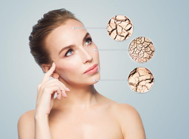 Rozpoznanie suchej skóry u kobiety
